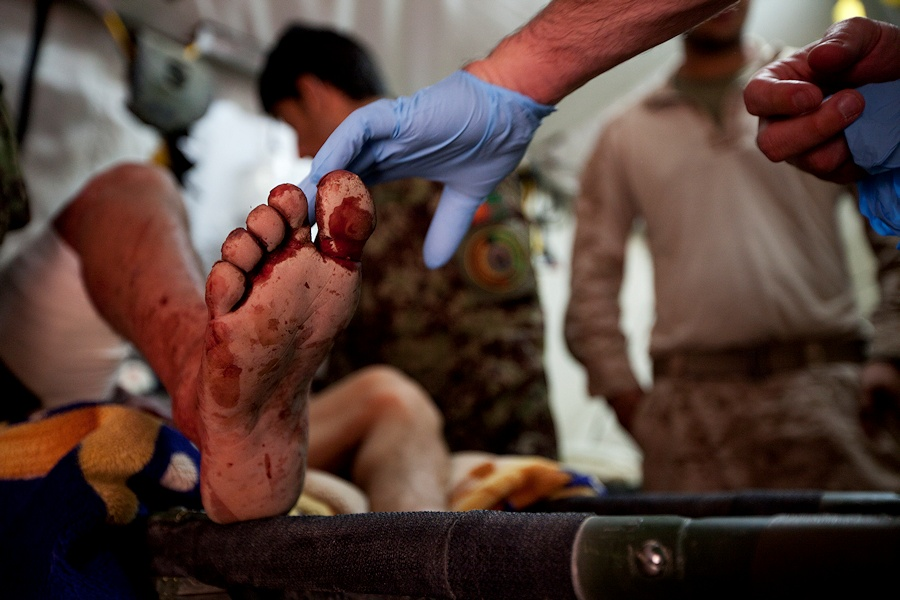 U.S. Navy Petty Officer 2nd Class William Frey, a corpsman with the Security Force Assistance Advisory Team (SFAAT) attached to the Afghan National Army's (ANA) 215th Corps, touches the foot of an Afghan patient being treated for improvised explosive device injuries at forward operating base (FOB) Delaram, Helmand Province, Afghanistan, March 20, 2013. The corpsman at FOB Delaram live and work alongside their ANA counterparts and often treat civilian casualties from the surrounding area. (DoD photo by Sgt. Tammy K. Hineline, U.S. Marine Corps/Released)